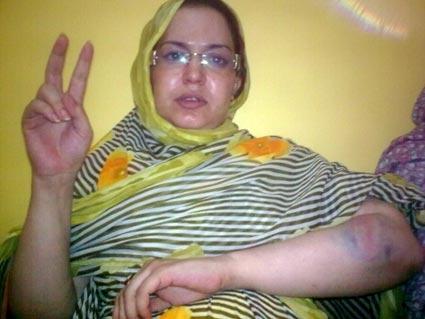 تعرض ناشطة حقوقية صحراوية للمضايقة والتعنيف بمدينة بوجدور المحتلة